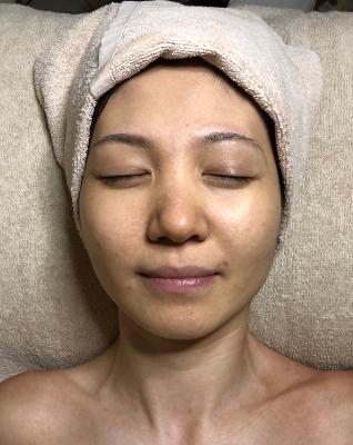 療程前-微晶磨皮水凝淨肌護理-1