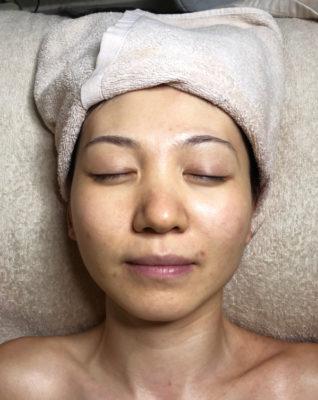 療程後-微晶磨皮水凝淨肌護理-2-318x400